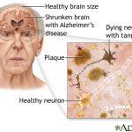 Apple avoid alzheimer's desease